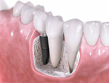 Implant are small cylindrical titanium fixtures that replace missing tooth...