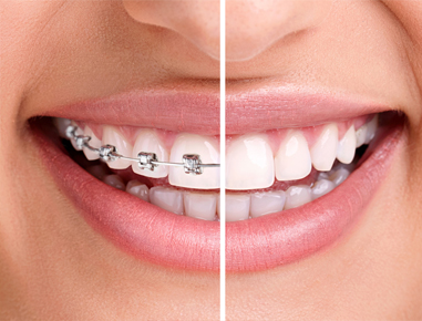 Orthodontic treatment involves prevention & correction of misaligned teeth...
