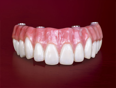 Modern technology has improved the quality and strength of the dentures to....